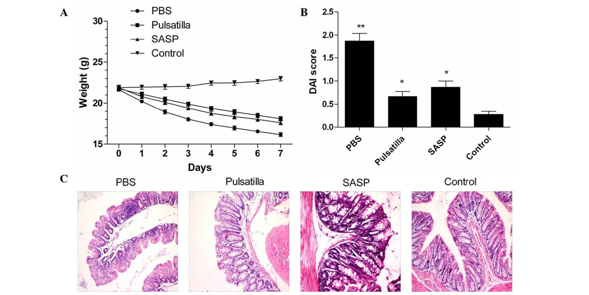 hight resolution of modified pulsatilla decoction treatment attenuates the severity of oxazolone induced colitis in mice a weight loss of oxazolone induced colitis mice