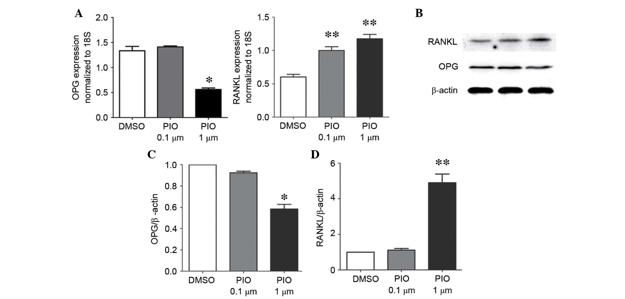 Pioglitazone affects the OPG/RANKL/RANK system and