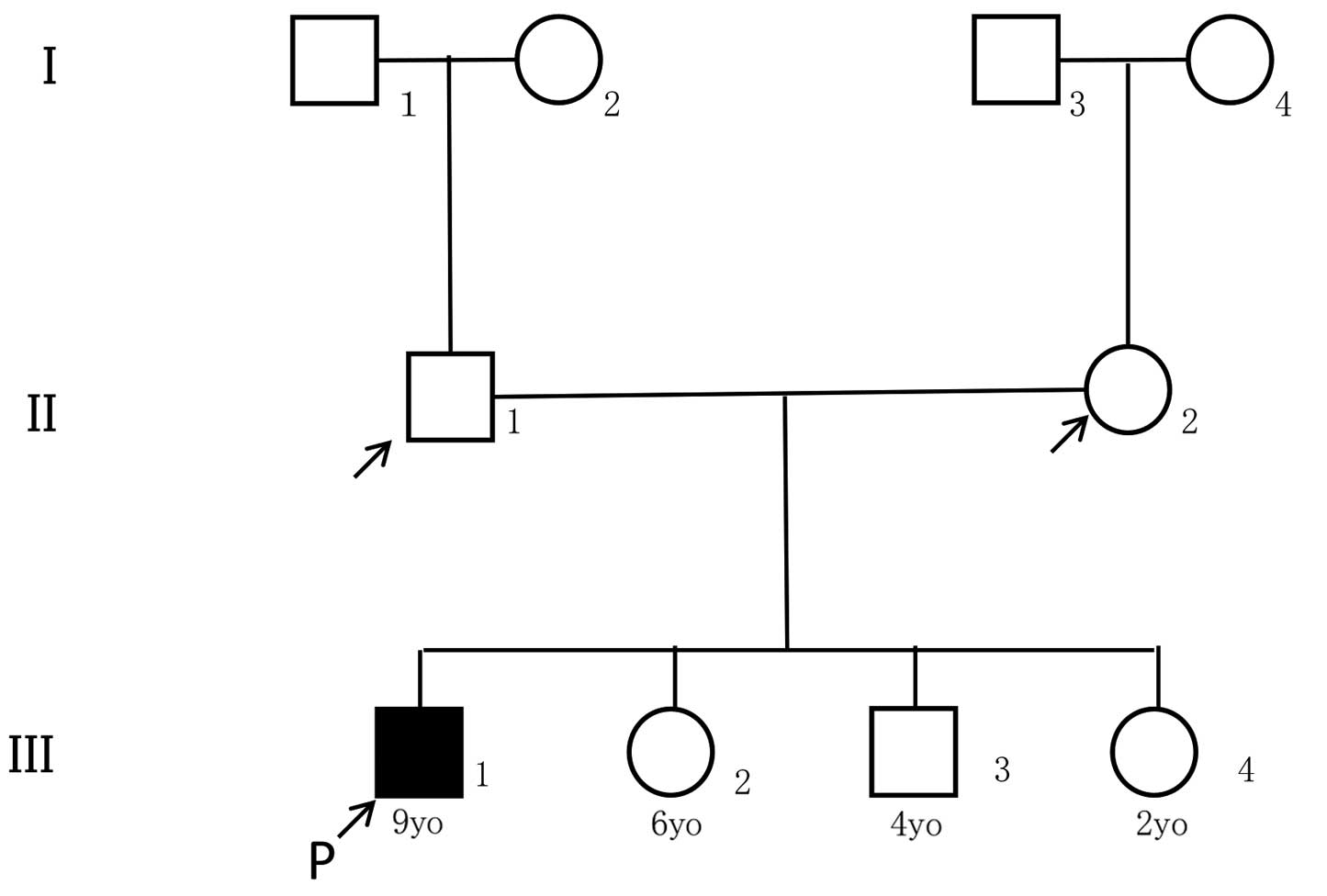 Whole Exome Sequencing Identification Of Novel Dnah5 Mutations In A Young Patient With Primary