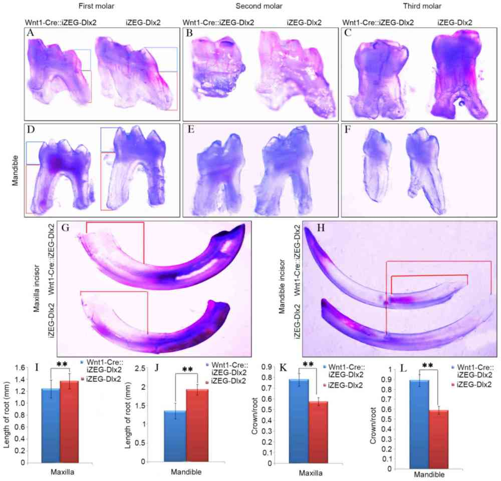 medium resolution of figure 2 overexpression of dlx2 led to tooth dysmorphia general observation under an integrated microscope revealed shorter roots and root morphology