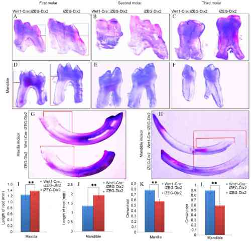 small resolution of figure 2 overexpression of dlx2 led to tooth dysmorphia general observation under an integrated microscope revealed shorter roots and root morphology