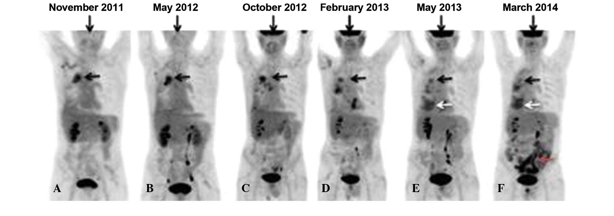 Small bowel metastasis from pancreatic cancer in a long
