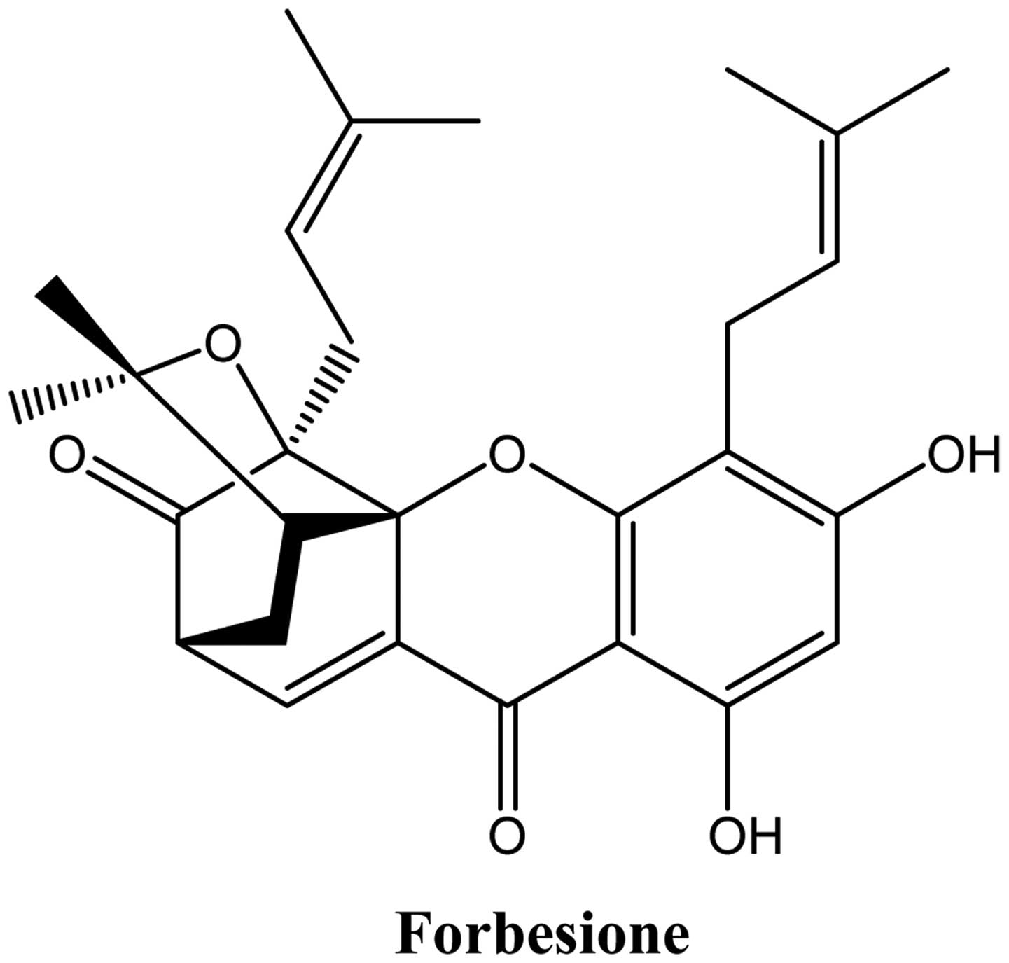 Antitumor effect of forbesione isolated from Garcinia