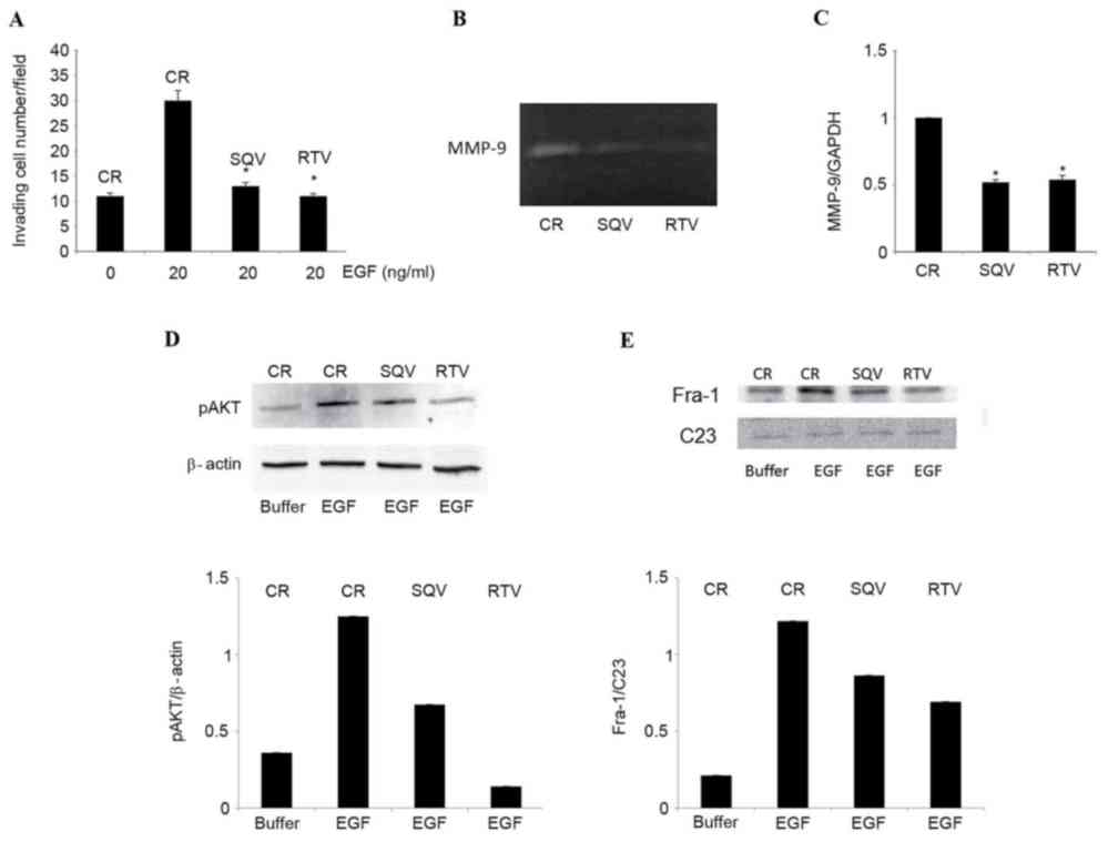 medium resolution of w12 cells were cultured for 96 h in the presence of 10 m sqv or rtv or in their absence control a cells were stimulated to invade a reconstituted