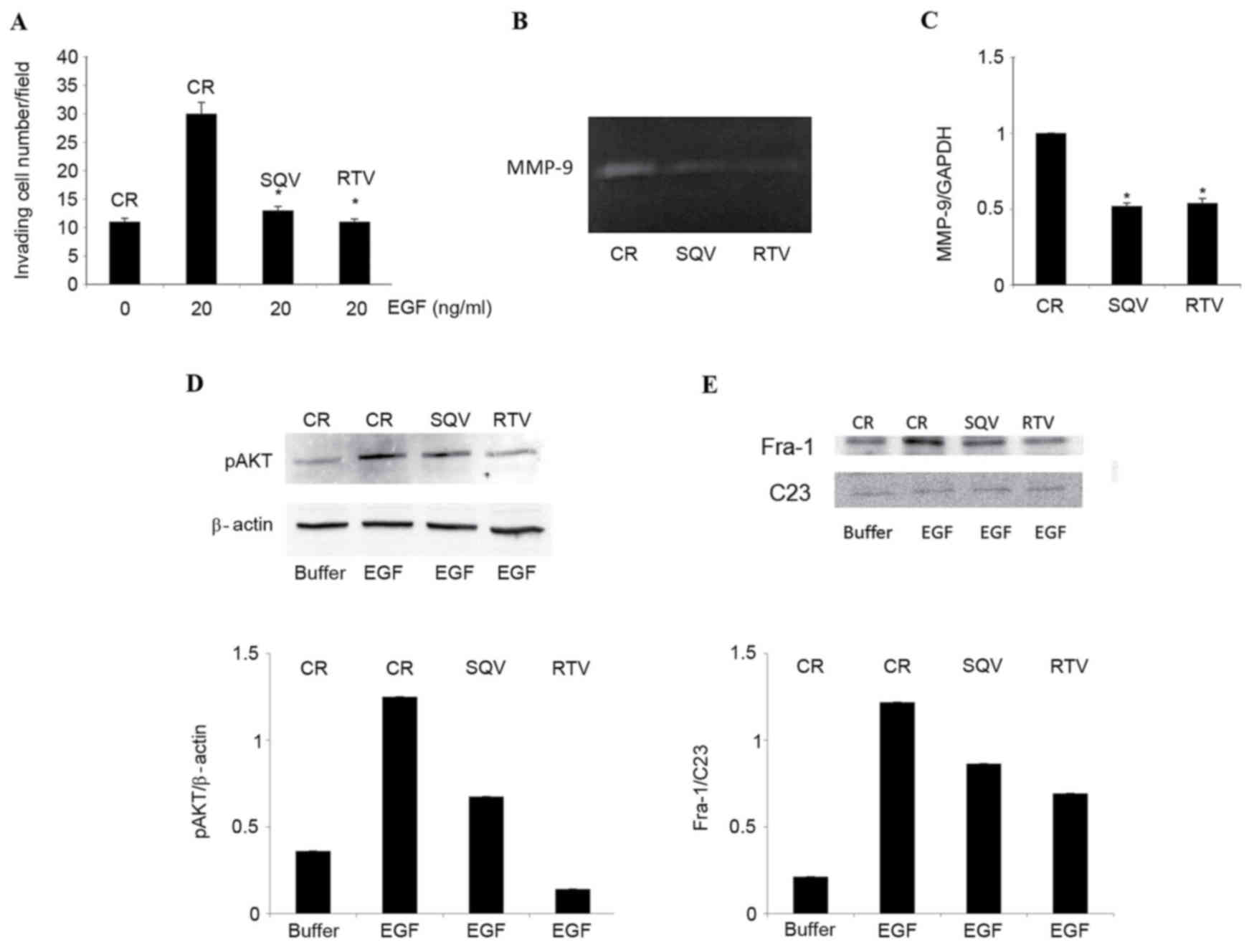 hight resolution of w12 cells were cultured for 96 h in the presence of 10 m sqv or rtv or in their absence control a cells were stimulated to invade a reconstituted