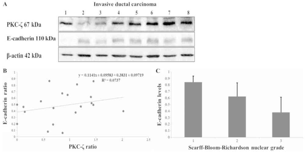 medium resolution of  b we normalized densities of pkc and e cadherin protein expression based on actin levels and plotted them on a scattered plot graph to test for a