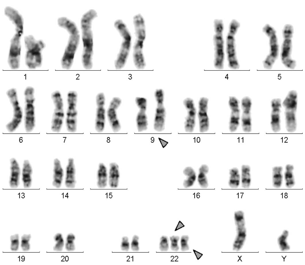 Multiple Copies Of Bcr Abl Fusion Gene On Two Isodicentric