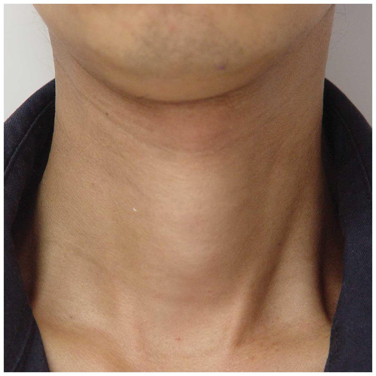 Visible Enlargement Of Thyroid Gland