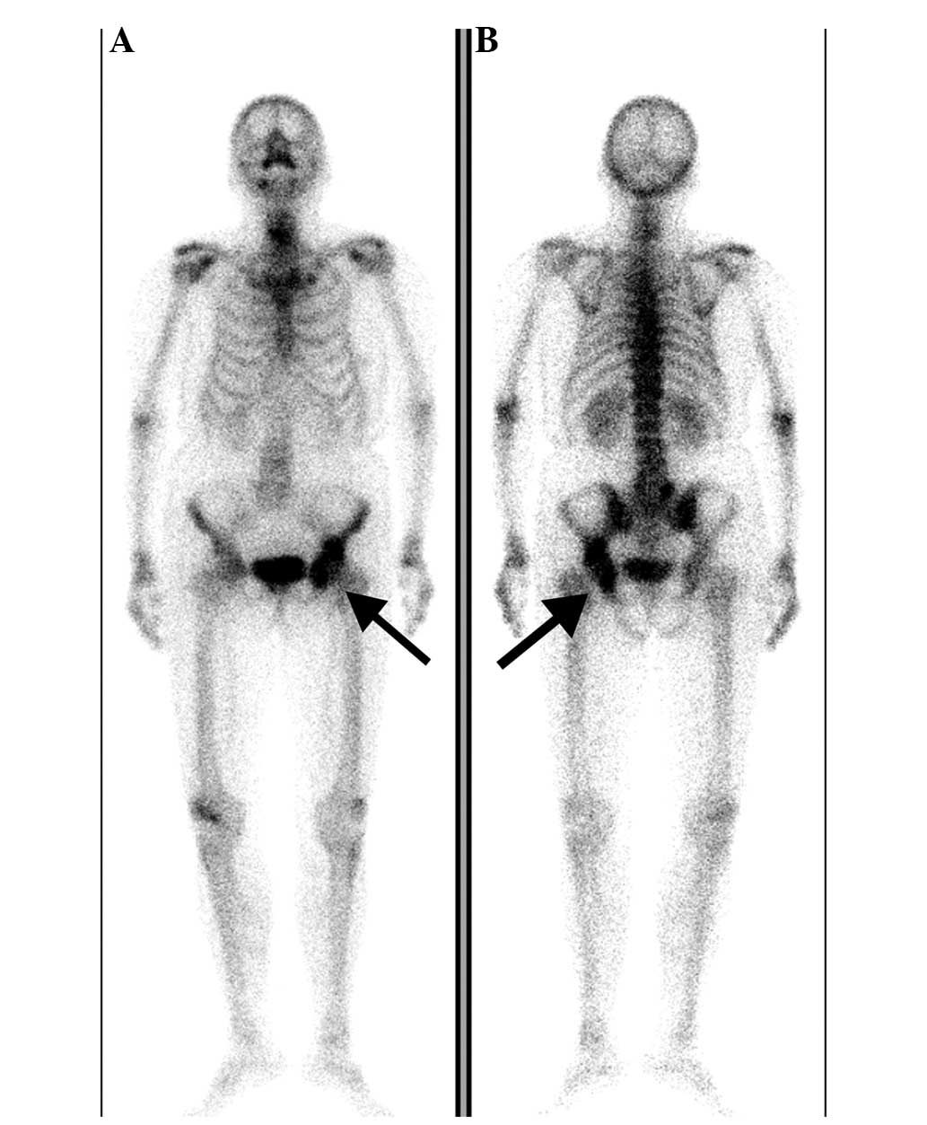 Primary bone lymphoma: A case report and review of the