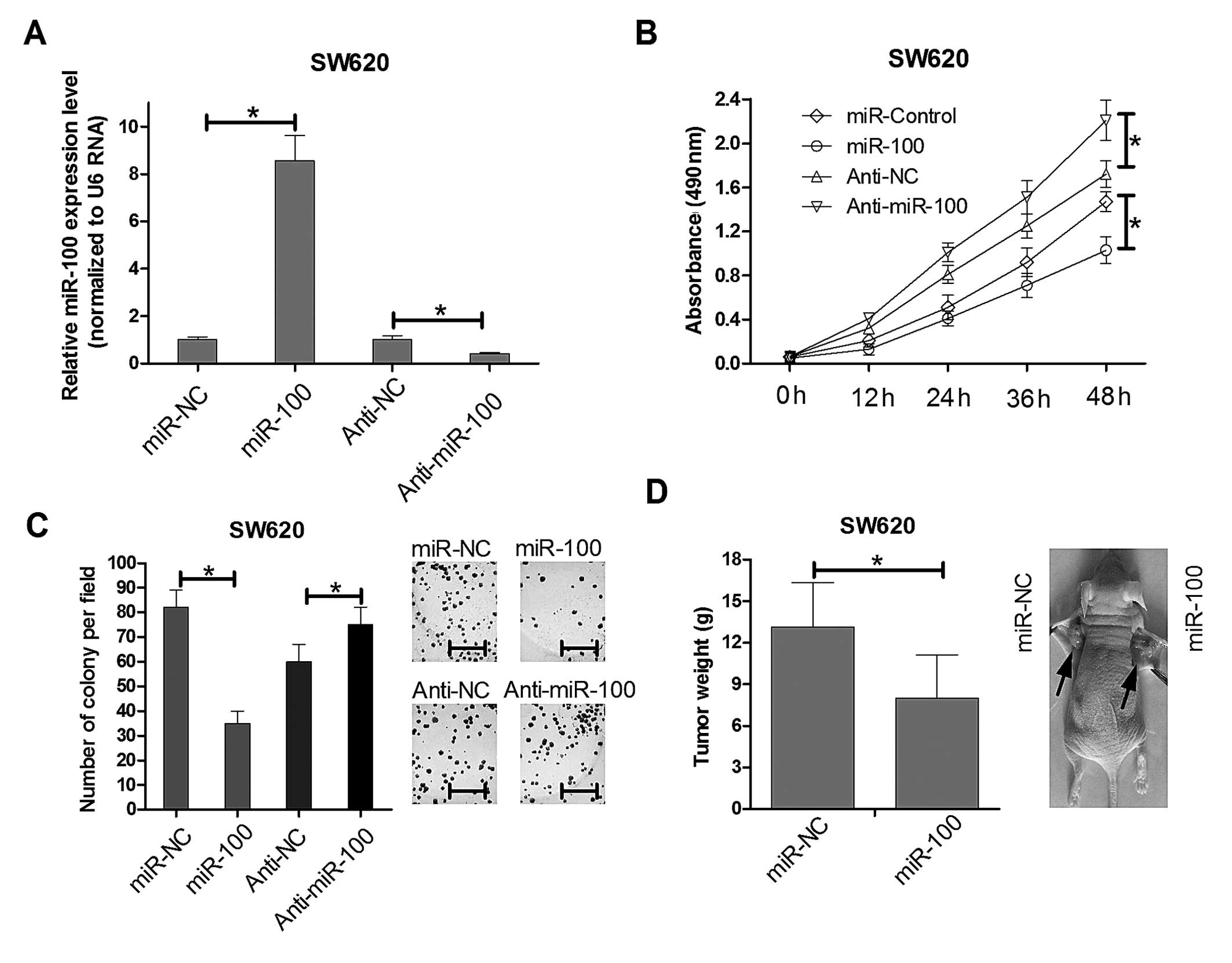 MicroRNA-100 regulates SW620 colorectal cancer cell