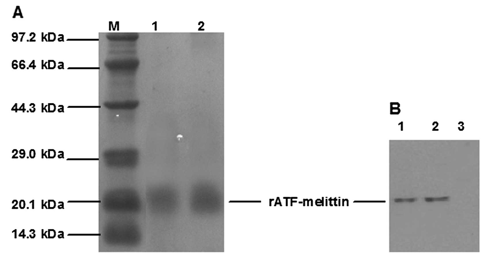 Expression And Purification Of Recombinant Atf Mellitin A New Type Fusion Protein Targeting