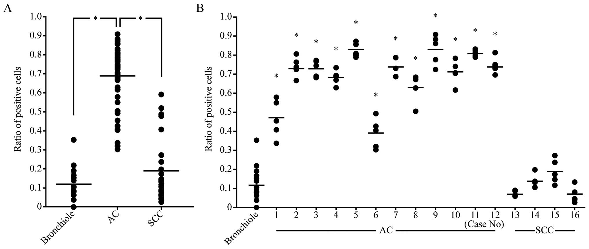 Activation of ERK/IER3/PP2A-B56γ-positive feedback loop in