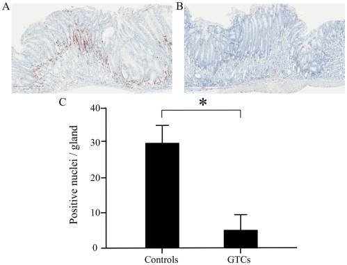 small resolution of figure 4 immunohistochemical detection of ki 67 in the proximal corpus of the stomach green tea catechin gtc supplemented mice showed significantly
