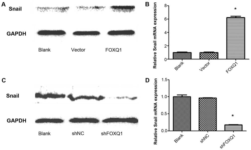 medium resolution of overexpression of foxq1 promotes snail expression but it is inhibited by knockdown of foxq1 overexpression of foxq1 increased the expression of snail at