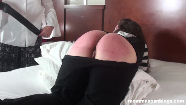 Angel Lee's sore red bottom in dropseat pajamas