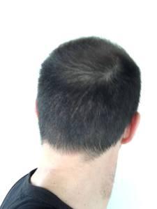 27336938_346591882490203_1173105314122817229_n-225x300 Perché fare il trapianto dei capelli in Turchia? Vantaggi e svantaggi di questo trattamento