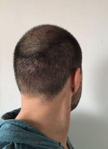 27540370_346591839156874_4513149011538696061_n-218x300 Perché fare il trapianto dei capelli in Turchia? Vantaggi e svantaggi di questo trattamento