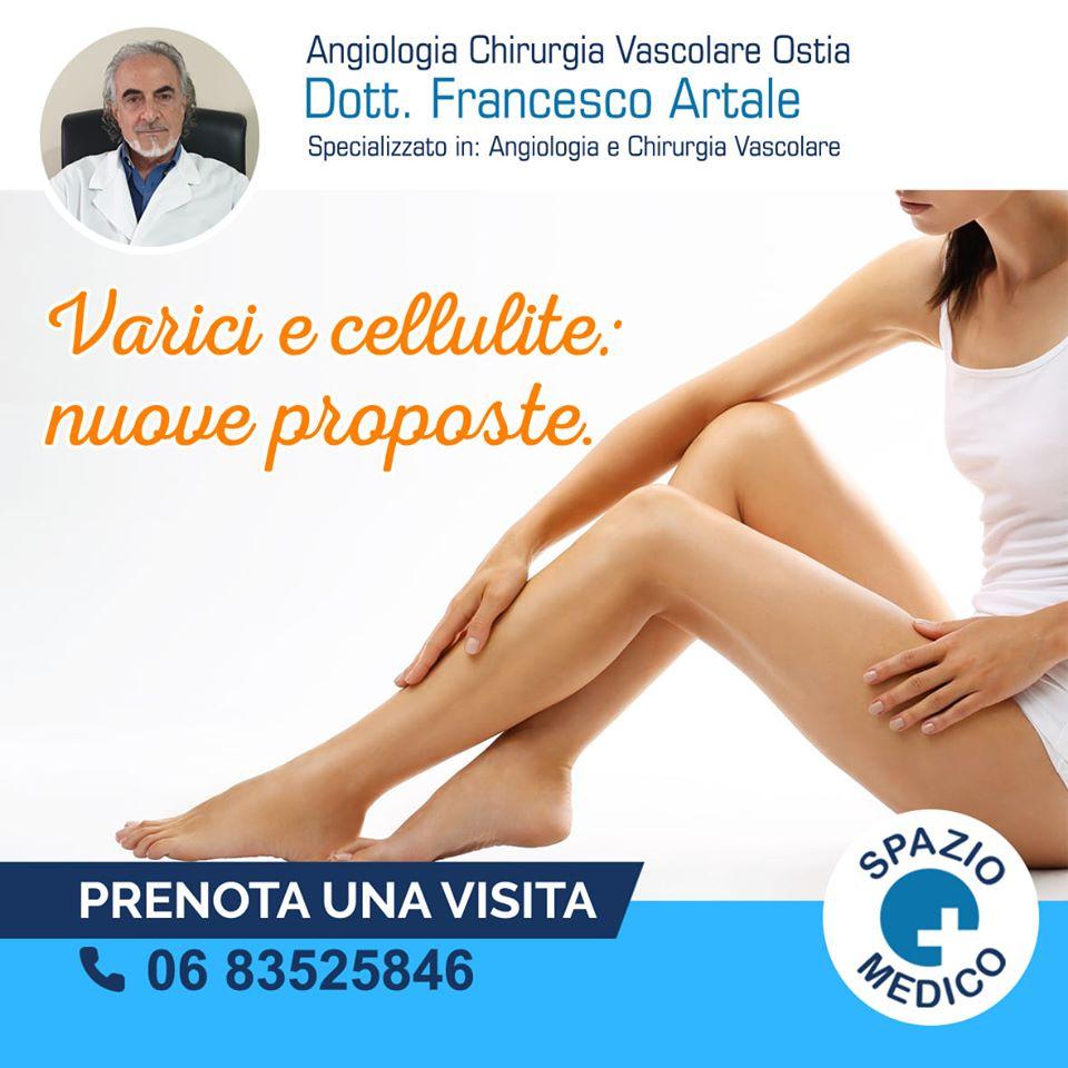 Chirurgia Vascolare Dott.Francesco Artale