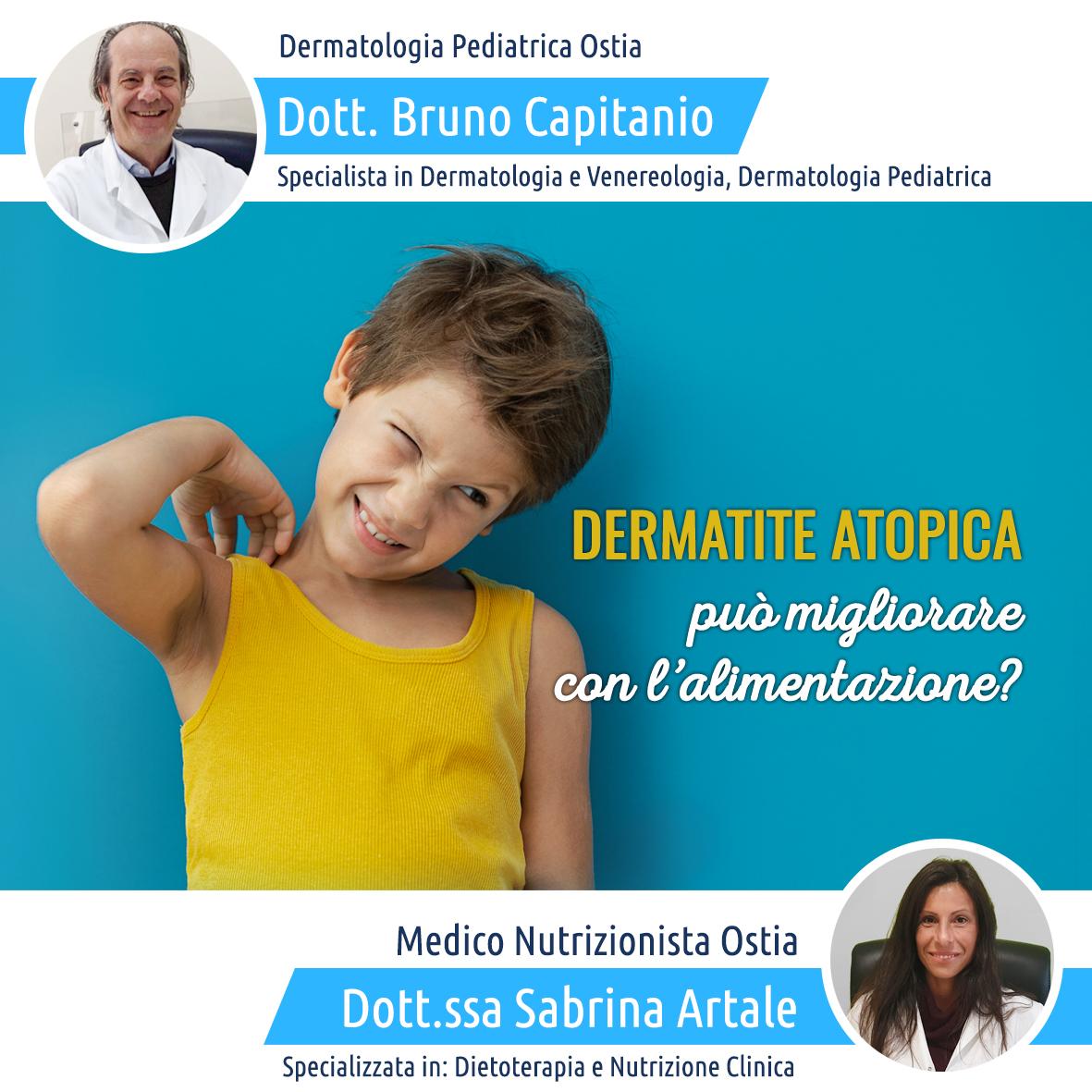czema-dermatite-atopica