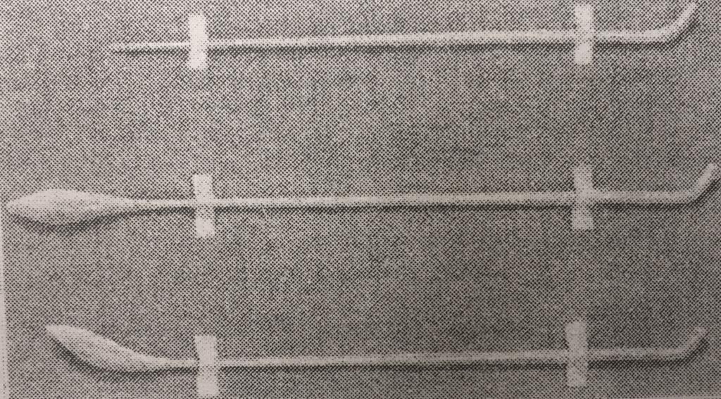Sphenopalatine Ganglion (SPG) Blocks   SPG Blocks   Chicago