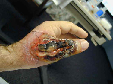 necrotic brown recluse bite on hand