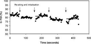 Precision of measurement of cerebral tissue oxygenation