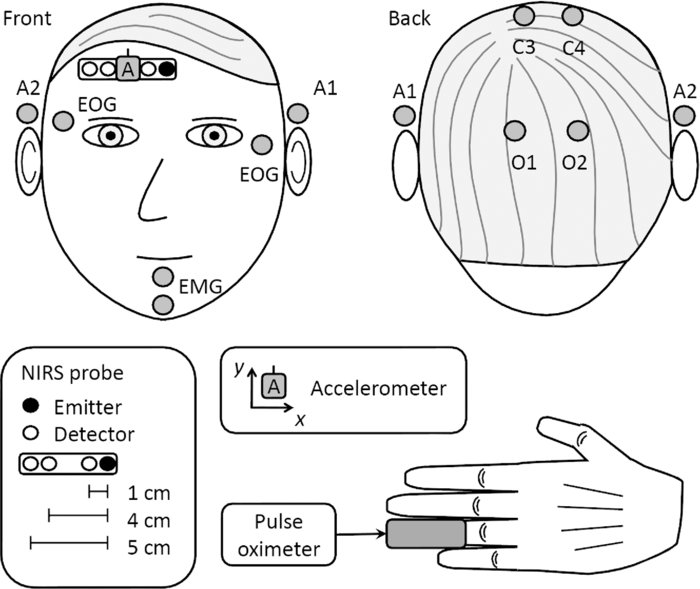 Accelerometer-based method for correcting signal baseline