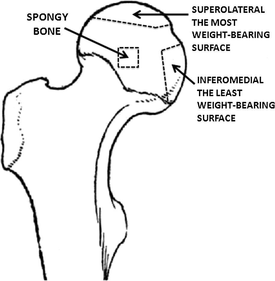 hight resolution of schematic diagram of the human femoral head with sites from which samples of spongy and subchondral bone were selected