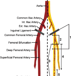 and the upper leg right side treatment options for critical stenoses occlusions depending on the vascular territories 1 open surgical approach  [ 830 x 1056 Pixel ]