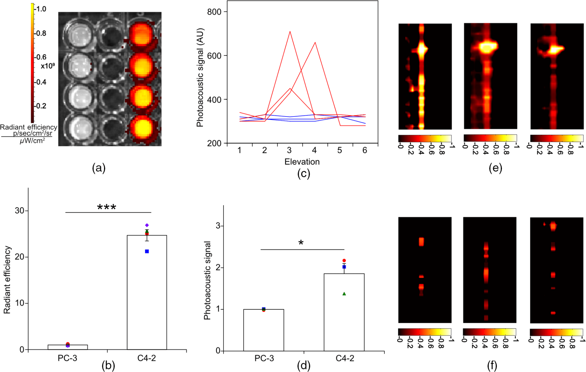 hight resolution of photoacoustic imaging with an acoustic lens detects prostate cancerjbo 21 6 066019 f005 png