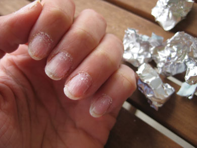 Sac Removed Off All The Nails These Will Look Pretty Gnarly Right Now But Simply Wash Your Hands Dry Them And Put Some Nail Polish Remover On A