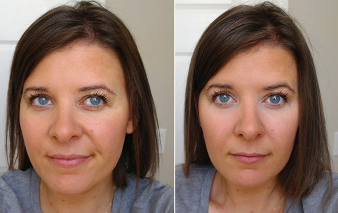 before-after-concealer