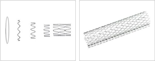 Fiber Laser Welding of Fine Wires for Medical Devices