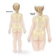 spina bifida back posture