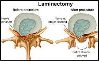 Image result for laminectomy