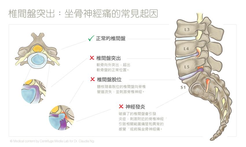 腰椎間盤突出原因及治療   坐骨神經痛的常見成因   香港護脊中心