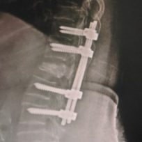 spinal-fracture-1-320x218