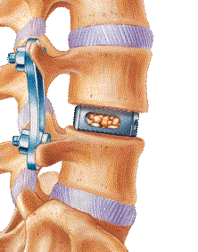 LIF (Lateral Interbody Fusion) - Lauderdale-by-the-Sea FL