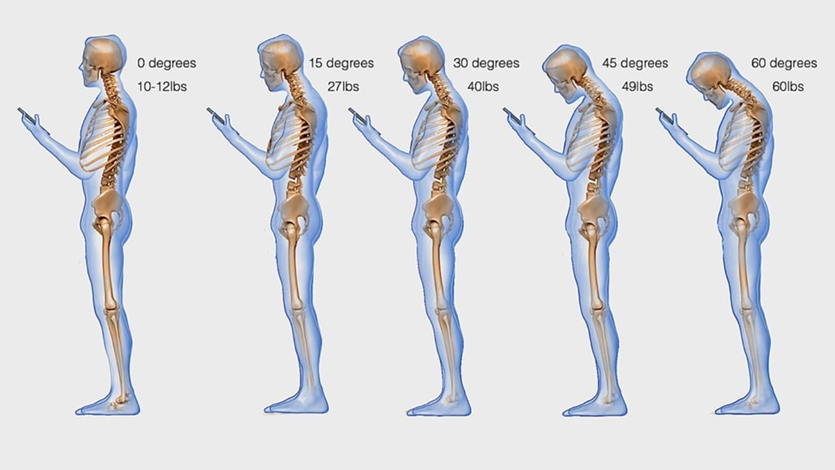 text neck syndrome signs symptoms and