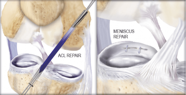 Postoperative Care After an ACL or Meniscus Repair ...