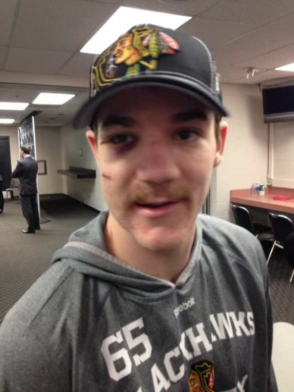 andrew-shaw-face-4