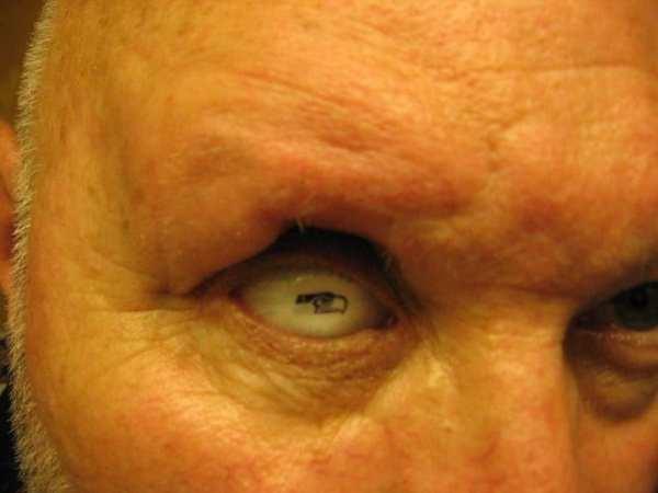 seahawks-prosthetic-eye