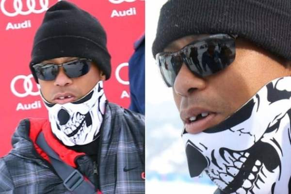 tiger-woods-missing-tooth