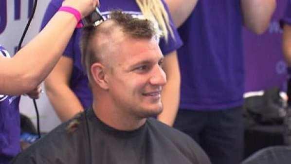 gronkowski-head-shaved