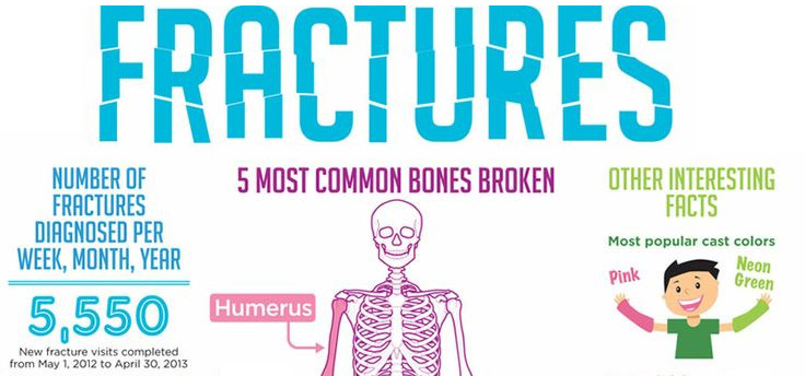5 Most Common Bone Fractures for Kids | Sports & Spine ...