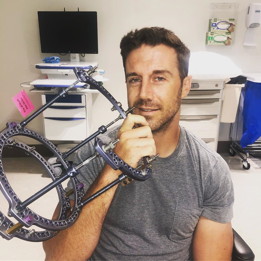 Alex Smith Finally Had the Brace Removed from His Leg