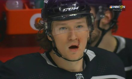 Kings Player Takes a Puck to the Face, Gets Stitched Up and Returned to the Game