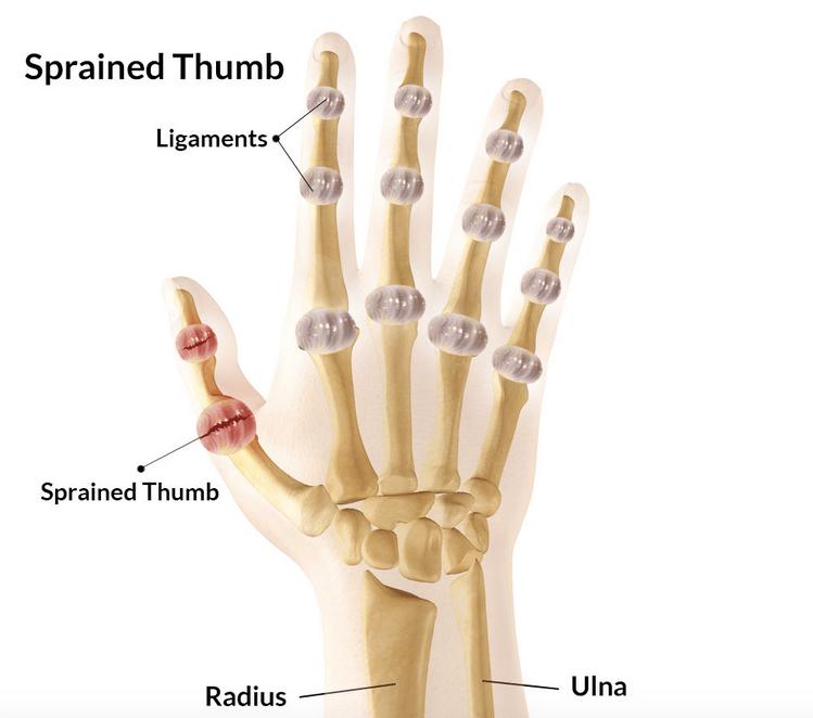 Sprained Thumb Symptoms treatment rehabilitation