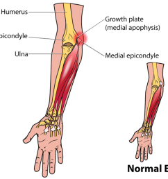 little leaguer s elbow [ 1024 x 791 Pixel ]