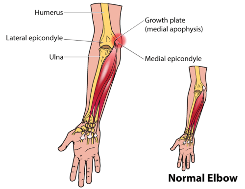small resolution of little leaguer s elbow